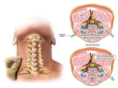 Cervical Transforaminal Epidural Steroid Injections
