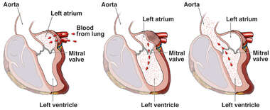 Function of the Mitral Valve in the Heart