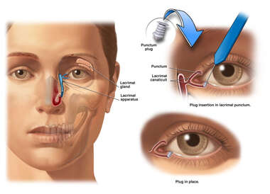 Surgical Blockage of Tear Drainage Duct