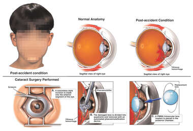 Traumatic Injury to the Eye with Subsequent Conditions