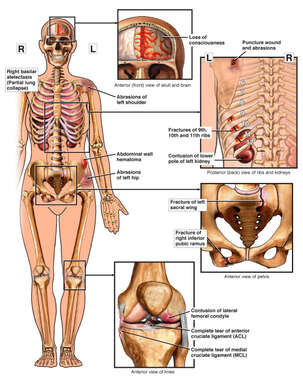 Female Figure with Brain Injury, Posterior Rib, Pelvic, and Left Knee Fractures