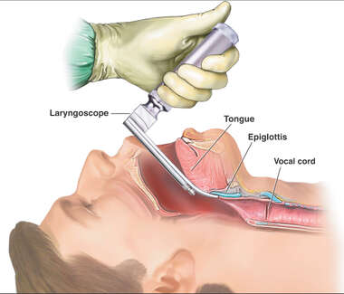 Opening Air Passage with a Laryngoscope