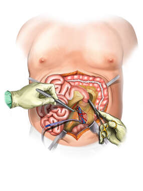 Bariatric Surgery - Gonadal Artery Injury Repair