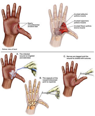 Right Thumb Injury with Surgical Repairs