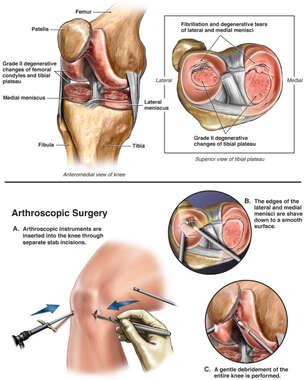Right Knee Injuries and Arthroscopic Surgery