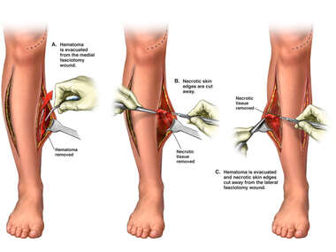 Debridement of Fasciotomy Wounds