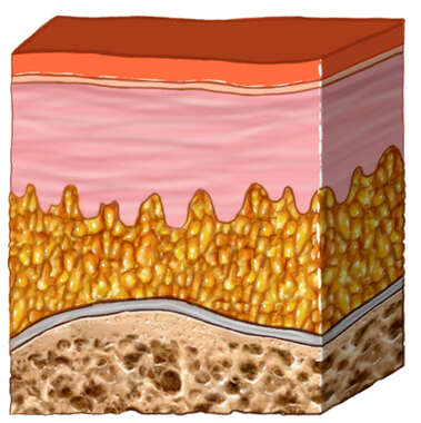 Skin Section with Bone