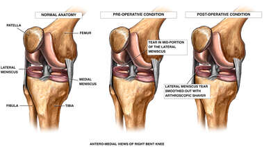 Right Knee Conditions