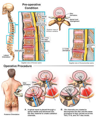 Thoracic and Upper Lumbar Disc Injuries with Multilevel Percutaneous Diskectomies