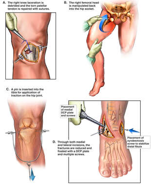 Lower Extremity Surgical Repairs