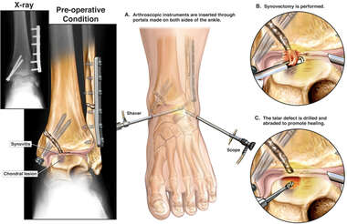 Post-traumatic Left Ankle Degenerative Changes with Arthroscopic Repairs