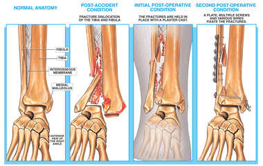 Traumatic Fracture of the Lower Leg and Ankle with Surgical Repair