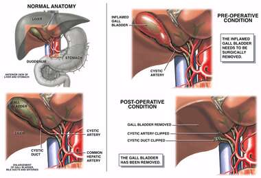 Surgical Removal of the Gallbladder
