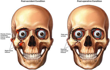 Post-accident Skull Fractures with Post-operative Fixation Plates