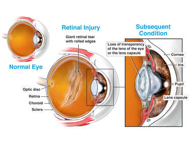 Retinal Injury - Torn, Detached with Subsequent Cataract Formation