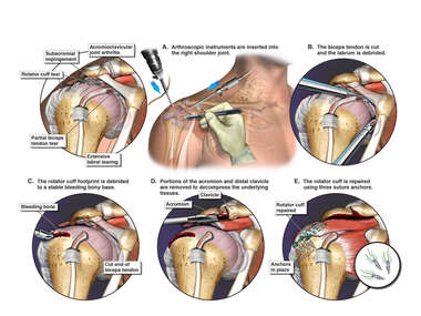 Arthroscopic Repairs of the Right Shoulder