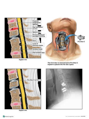 Additional Cervical Spine Injuries with Surgical Disc Replacement