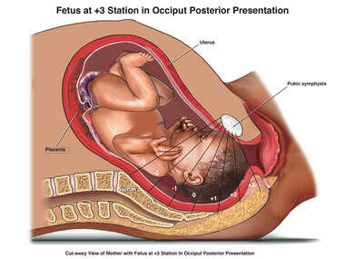 Fetus at +3 Station in Occiput Posterior Presentation