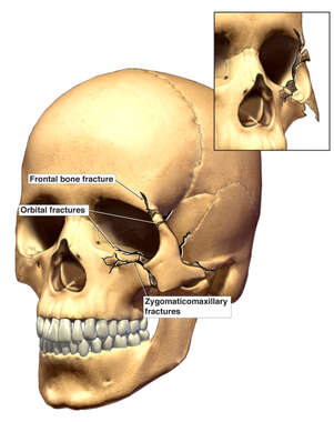 Frontal bone fracture