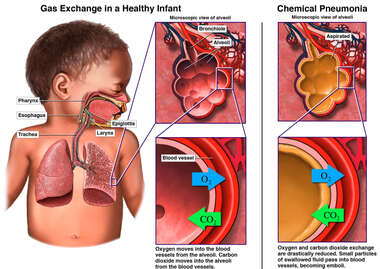 Chemical Pneumonia in an Infant