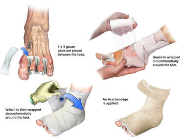 Wrapping of Post-operative Dressing on Left Foot
