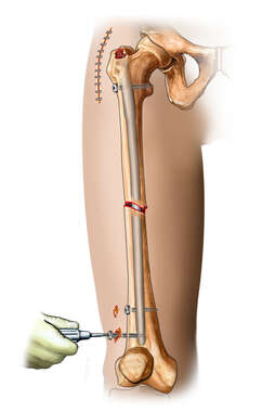 Intramedullary Rod in Place in Femur