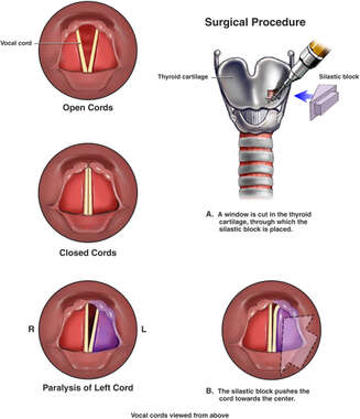 Unilateral Vocal Cord Paralysis with Surgical Repair