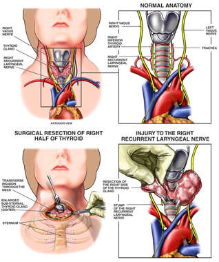 Thyroidectomy with Iatrogenic Laryngeal Nerve Resection