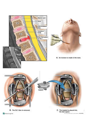 Cervical Disc Injury with Surgical Disc Replacement