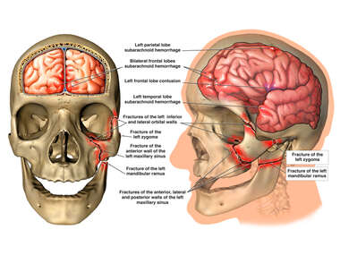 Traumatic Head Injuries with Initial Surgical Holocraniectomy and Ventriculostomy Procedure