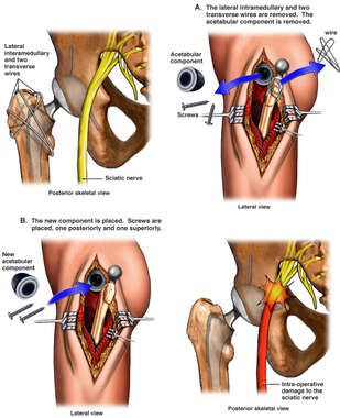 Revision of Left Hip Prosthesis with