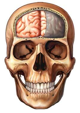 Skull with Brain and Dura Mater