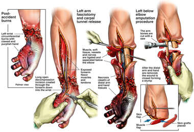 Surgical Procedures of the Left Arm