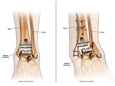 Total Left Ankle Replacement comparison