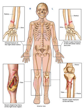 Child Skeletal Figure Post-accident Injuries to the Wrists and Legs Bilaterally
