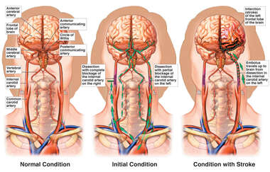 Interruption of the Cervical Vasculature with Infarction of the Left Frontal Lobe of the Brain