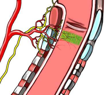 Endotracheal Intubation - Anatomy