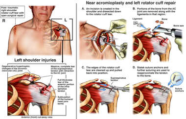 Right and Left Shoulder Rotator Cuff Tears with Open Surgical Repairs