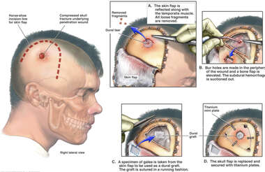 Right Frontoparietal Craniotomy with Repair of Depressed Skull Fracture