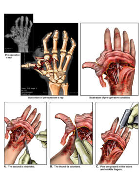 Crush Injury to the Right Hand with Surgical Amputation and Fixation