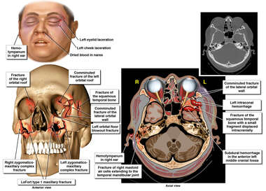 Skull Fractures and Brain hemorrhages