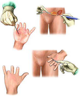Additional Surgical Repairs to the Left Hand with Groin Flap Reconstruction