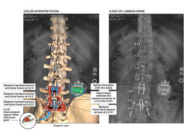 L3 to S1 Lumbar Bone Fusion and placement of Spinal Cord Stimulator