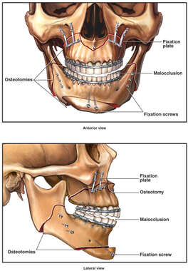 Mandibular Osteotomy Procedure with Post-operative Deformity