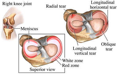 Knee Joint Injury-Torn Meniscus (Cartilage)
