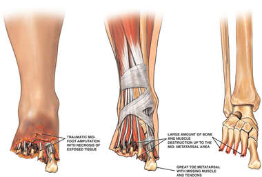 Injuries of the Left Foot