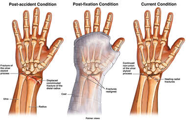 Progression of Wrist Injury