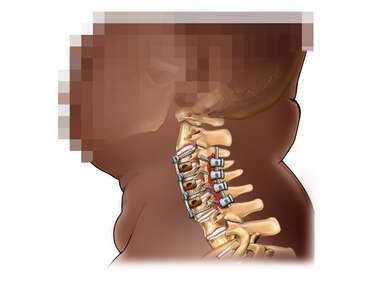 Lateral View of Cervical Fusion in Obese Black Male