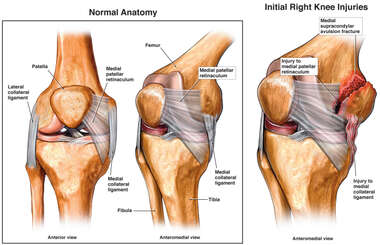 Injury to Medial Collateral Ligament