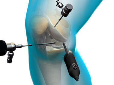 Arthroscopic Knee Instruments